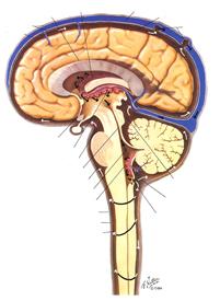 Gehirnwasser