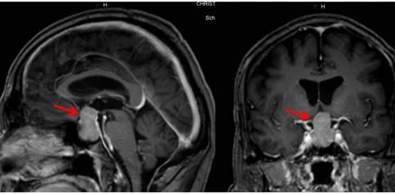 Erkrankungen der Hirnanhangsdrüse (Hypophyse)