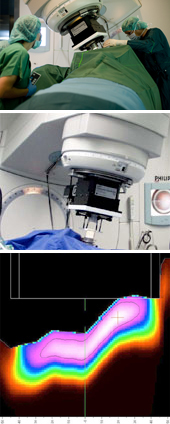 Intraoperative Radiotherapie (IORT)
